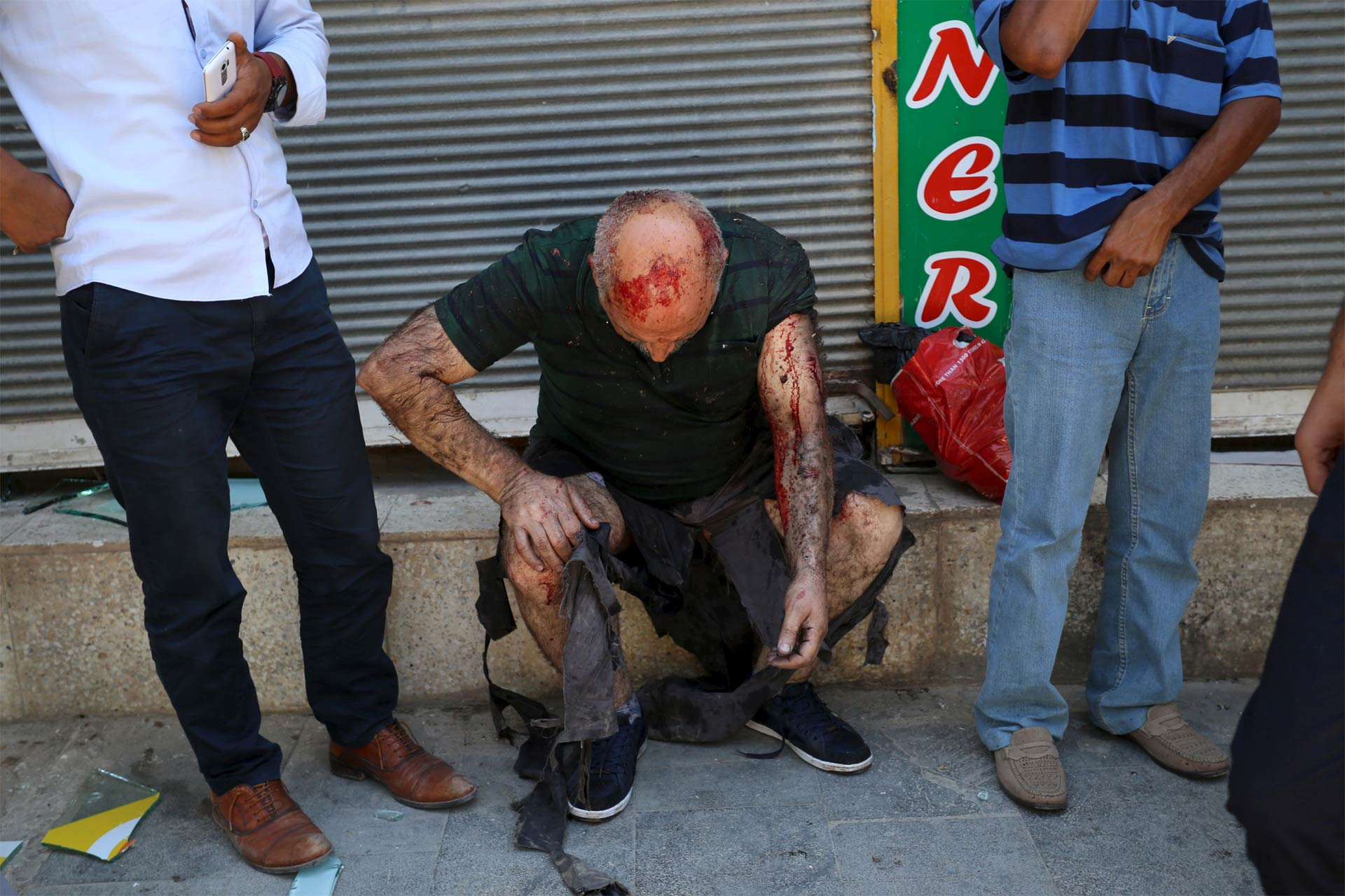 Hombre herido durante la explosión de este lunes en Suruc, Turquía.