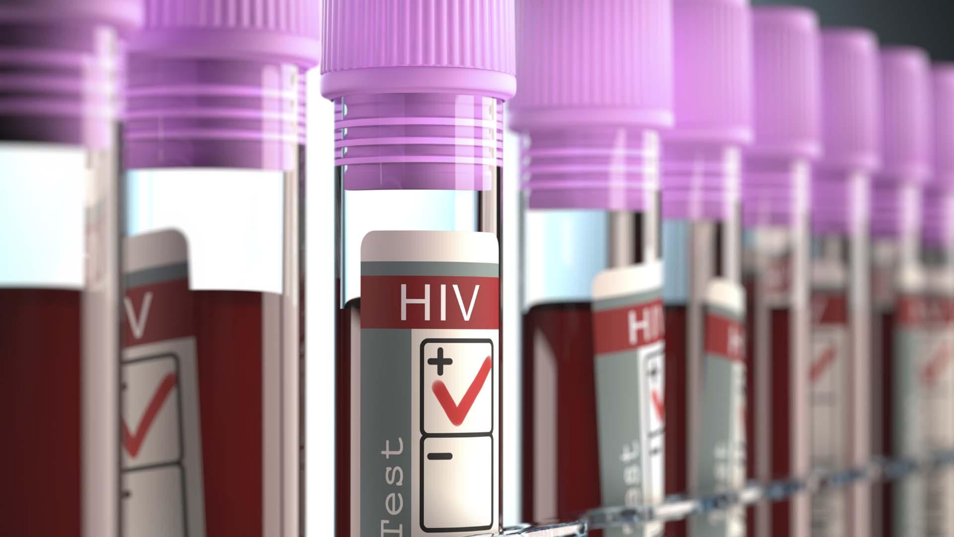 Avanzan las pruebas para la vacuna contra el VIH