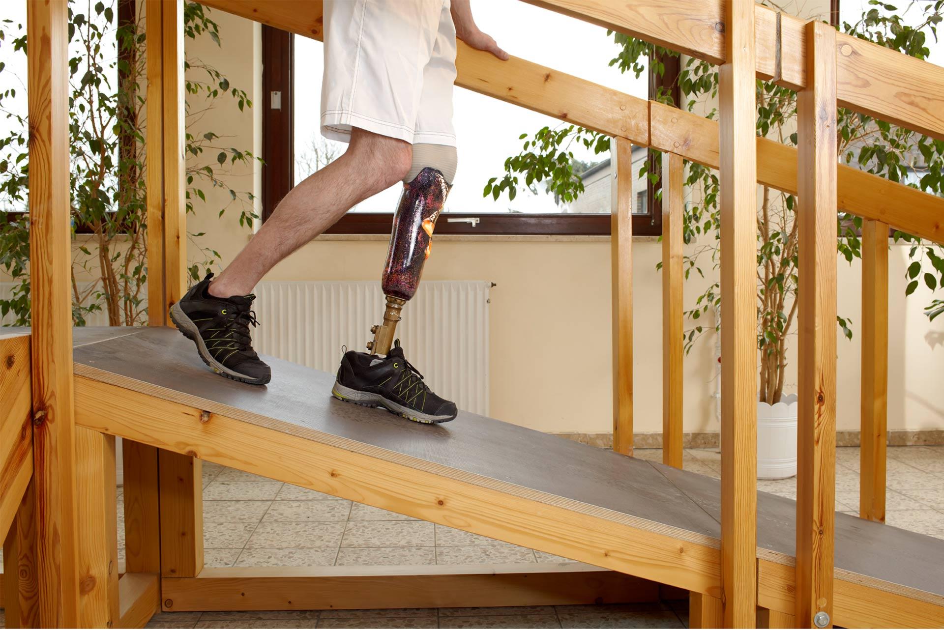 El proyecto fue ideado por estudiantes peruanos para mejorar la calidad de vida de quienes han perdido sus piernas