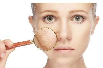 Descubre como disimular las marcas del acné