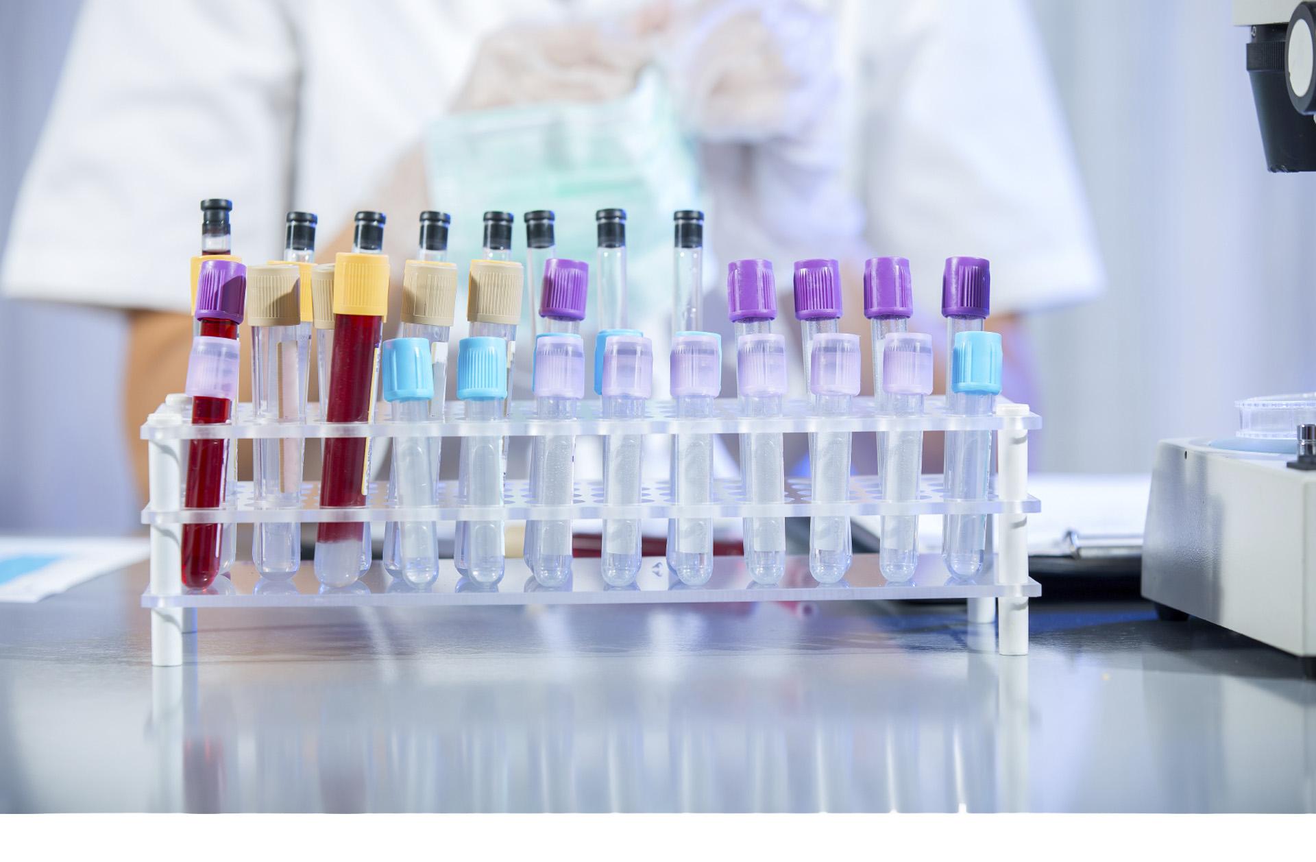 Detección precoz del cáncer de colon