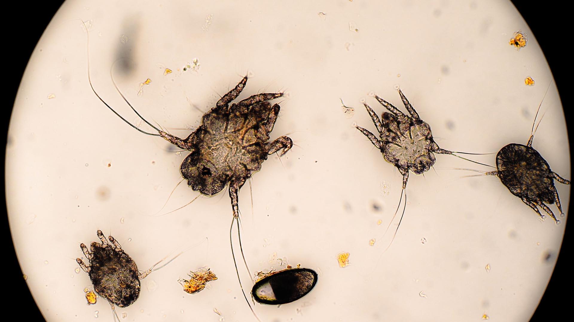 La presencia de estos parásitos al momento de dormir puede traer complicaciones al sistema respiratorio