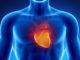 Un estudio reveló que ambos analgésicos podrían causar un un ataque cardíaco, sobretodo en pacientes con patologías de este tipo