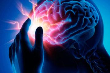 Estudios revelaron que las células inmunitarias son claves para el tratamiento posterior de un accidente cerebrovascular