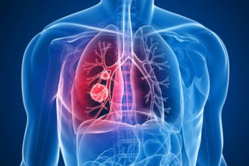 Ta1 es una nueva terapia terapéutica que reduce significativamente la inflamación observada en pacientes con la enfermedad