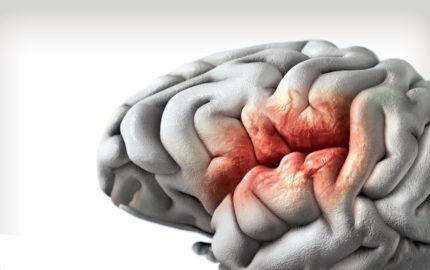 Una multinacional se encuentra desarrollando unos procesadores que, luego de implantarse en el cerebro, puedan revertir el padecimiento