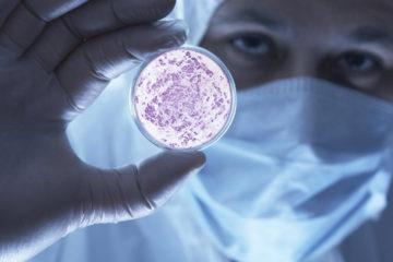 Luego del hurto de agentes contagiosos del INIA el pasado 27 de junio, es necesario conocer como pueden ser contraidos
