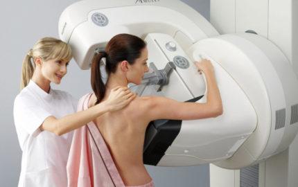 Este estudio ha demostrado disminuir un 25 a 30% la mortalidad por cáncer mamario, permitiendo evidenciar tumores dos años antes que la palpación