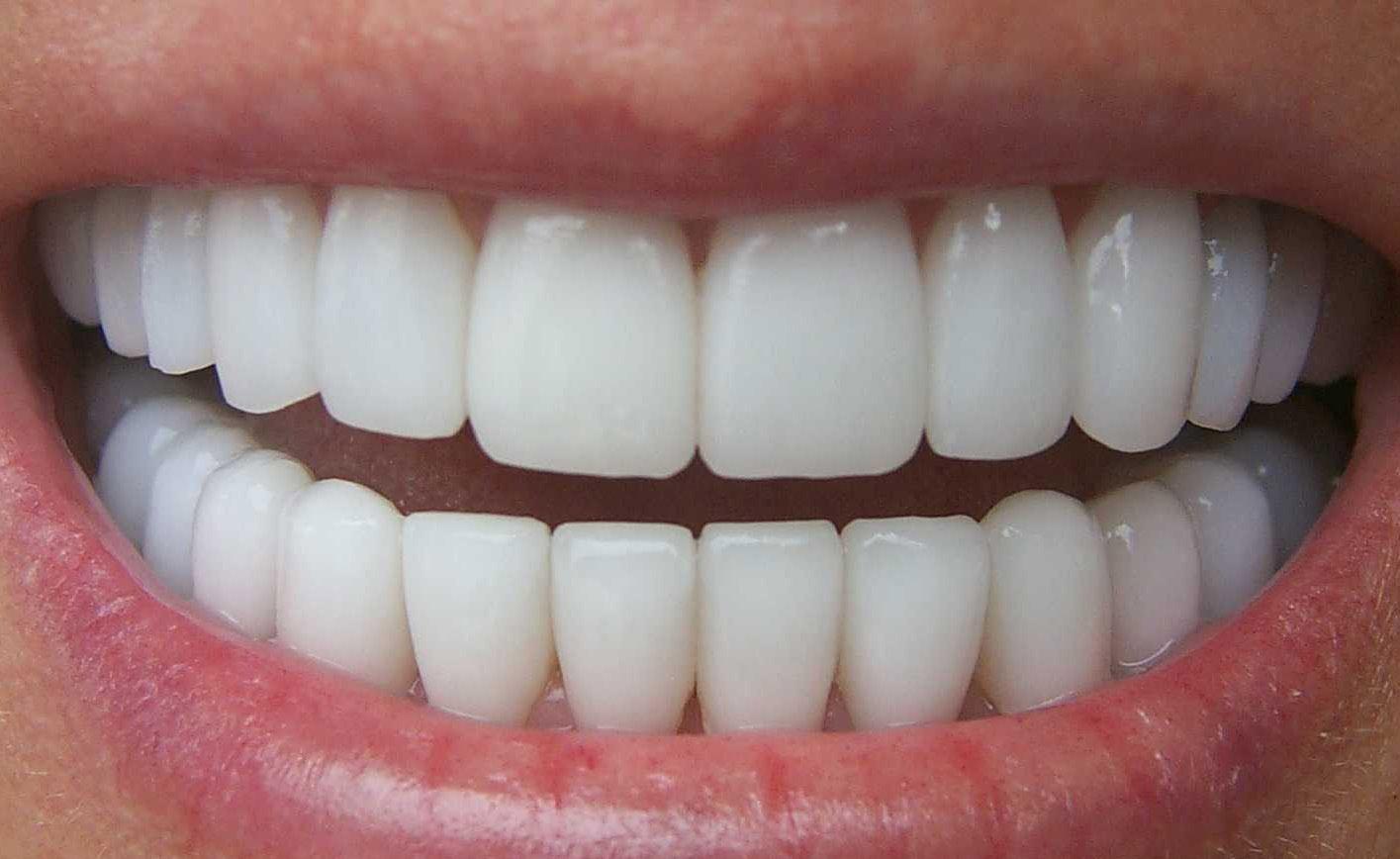 La pasta de dientes devolvía el mineral a los dientes cariados