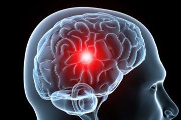Los investigadores encontraron que este intenso dolor de cabeza está asociado conataque cardíaco,accidente cerebrovascular,coágulos de sangrey frecuencia cardíaca irregular