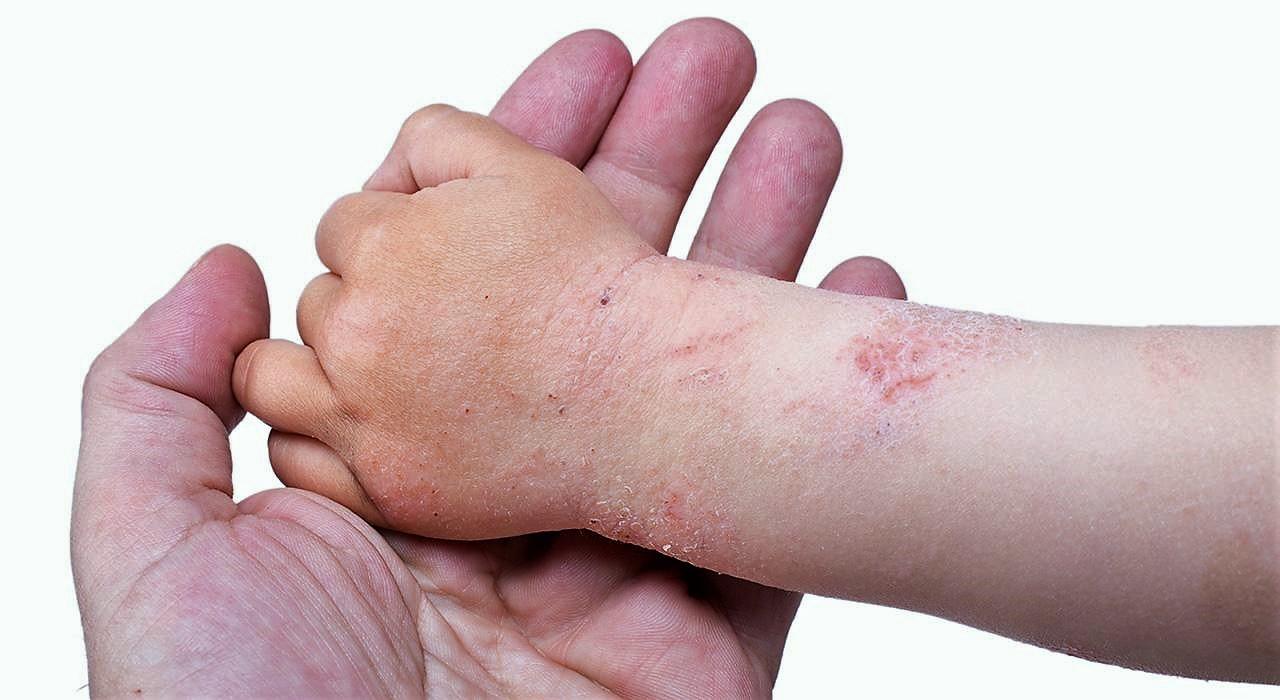 Video entrevista sobre dermatología infantil y de adultos