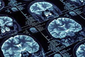 Las pruebas realizadas en laboratorio permiten detectar la conectividad cerebral antes de que se presenten los síntomas