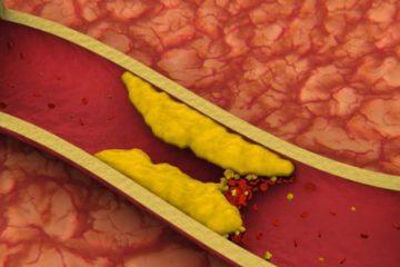 El hallazgo puede contribuir a desarrollar un tratamiento contra una enfermedad que afecta a millones de personas