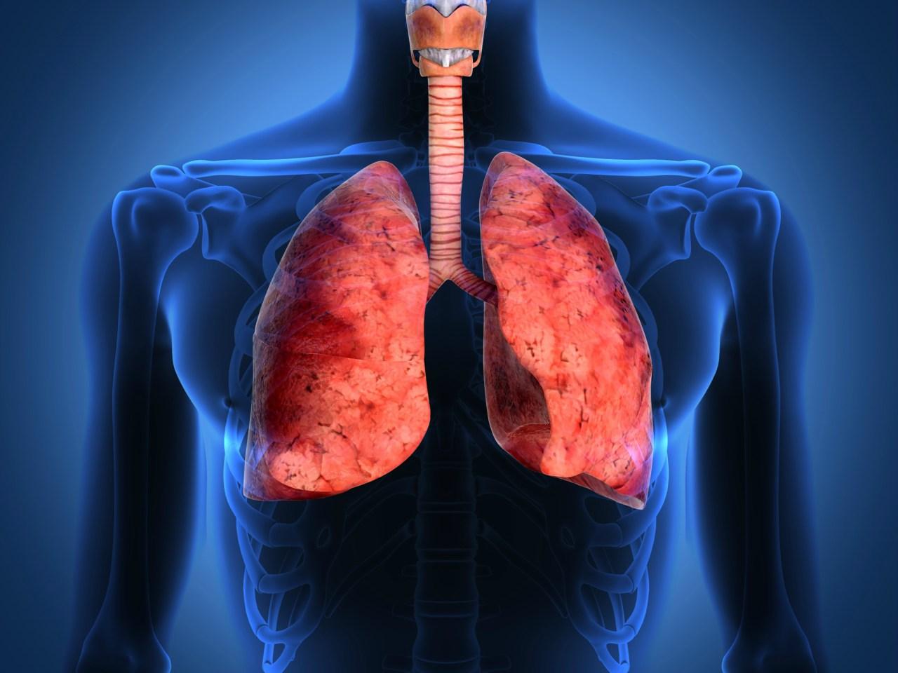 Un nuevo estudio detecta a tiempo el cáncer de pulmón