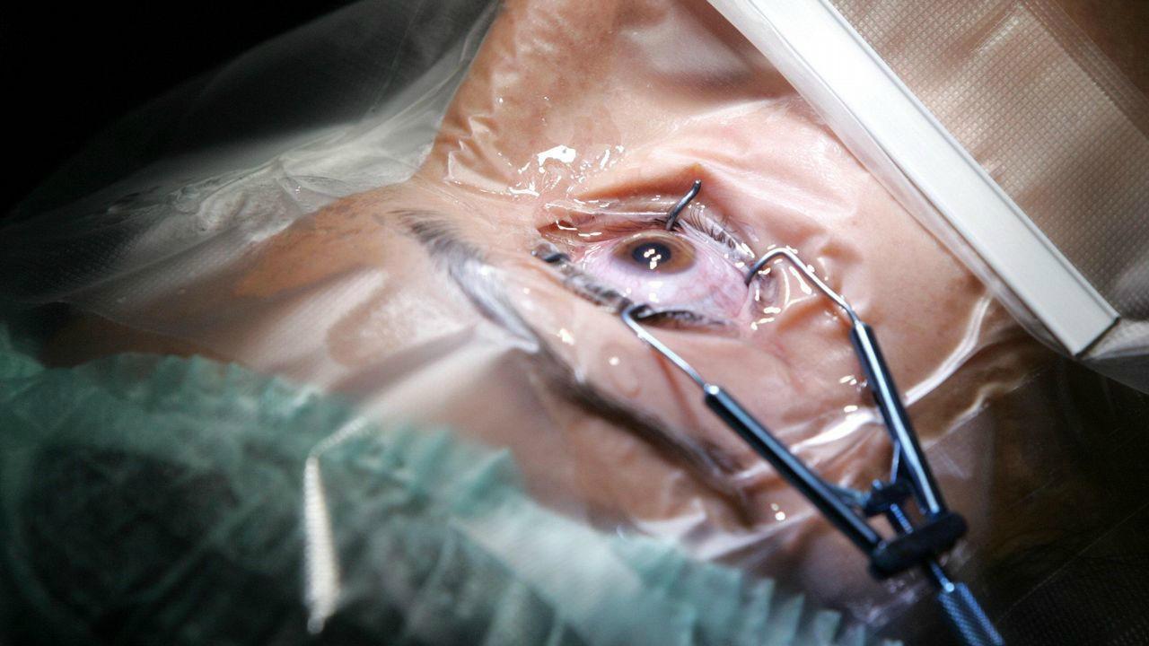 Científicos estudian un nuevo método para evitar el cáncer de ojo
