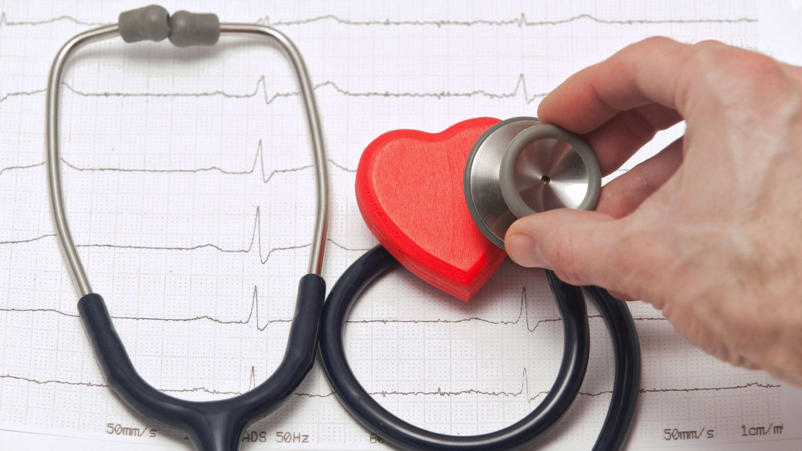 Consumo de aspirinas puede generar males cardíacos