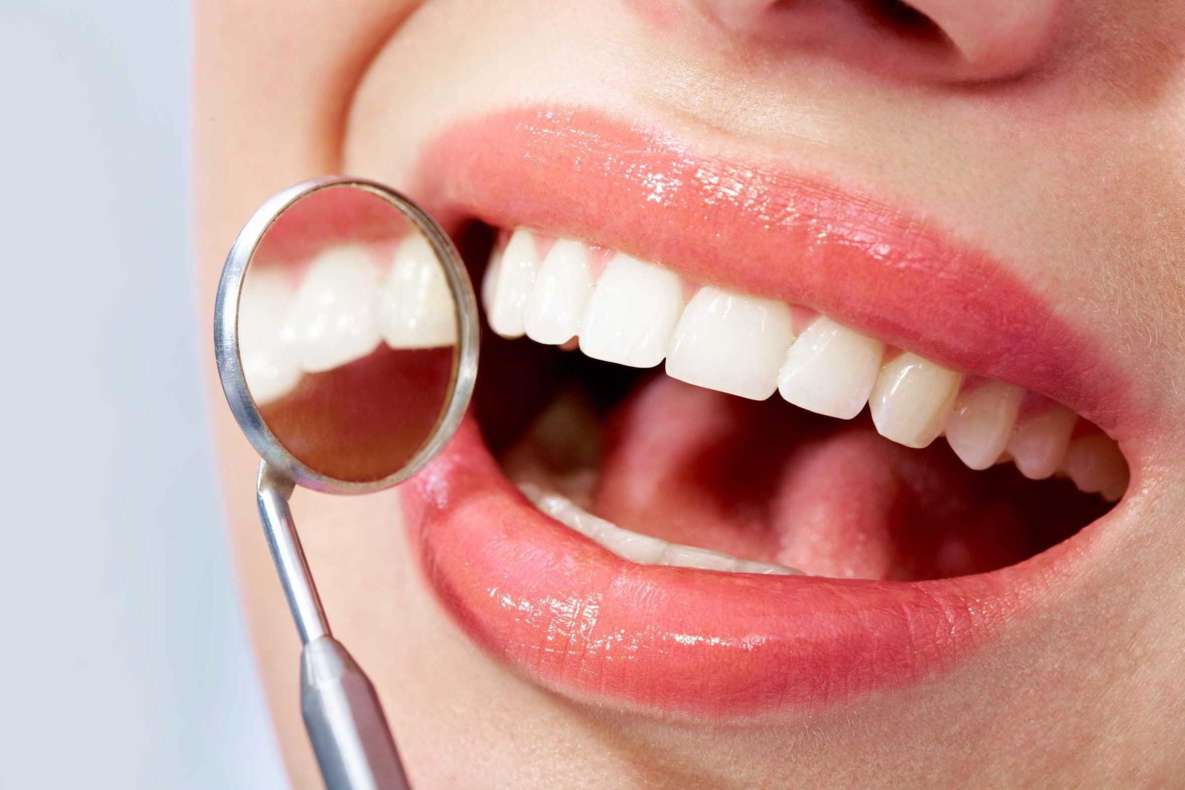 Dra. Koch: El correcto uso de carillas en la odontología moderna, parte 2