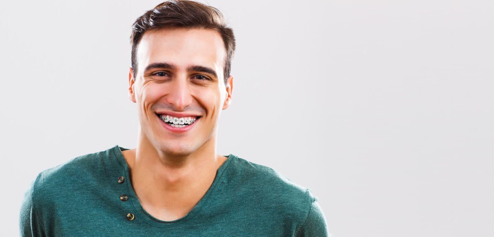 El Blanqueamiento Dental, culminación perfecta de un buen trabajo de Ortodoncia