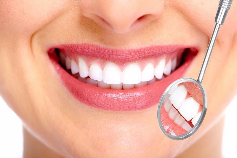 Dra. Katharina Koch: carillas corrigen problemas estéticos y funcionales de la dentadura, parte 1