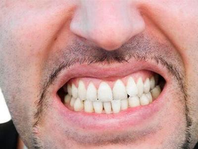 Manejo del Bruxismo: Soluciones frente al hábito de apretar o rechinar los dientes