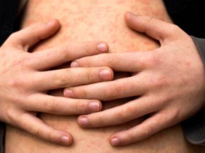 Alertan sobre el retorno del sarampión en plena pandemia