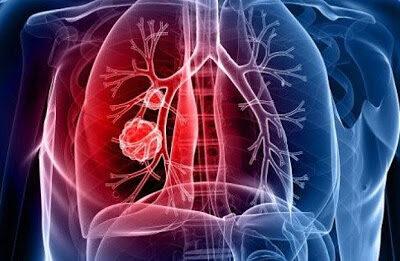 Investigadores lograron revivir varios pulmones