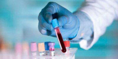 Prueba de sangre podría predecir el alzhéimer, según estudio
